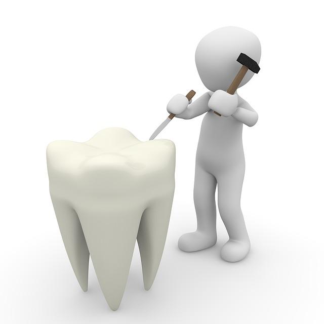fogászati fog implantátum
